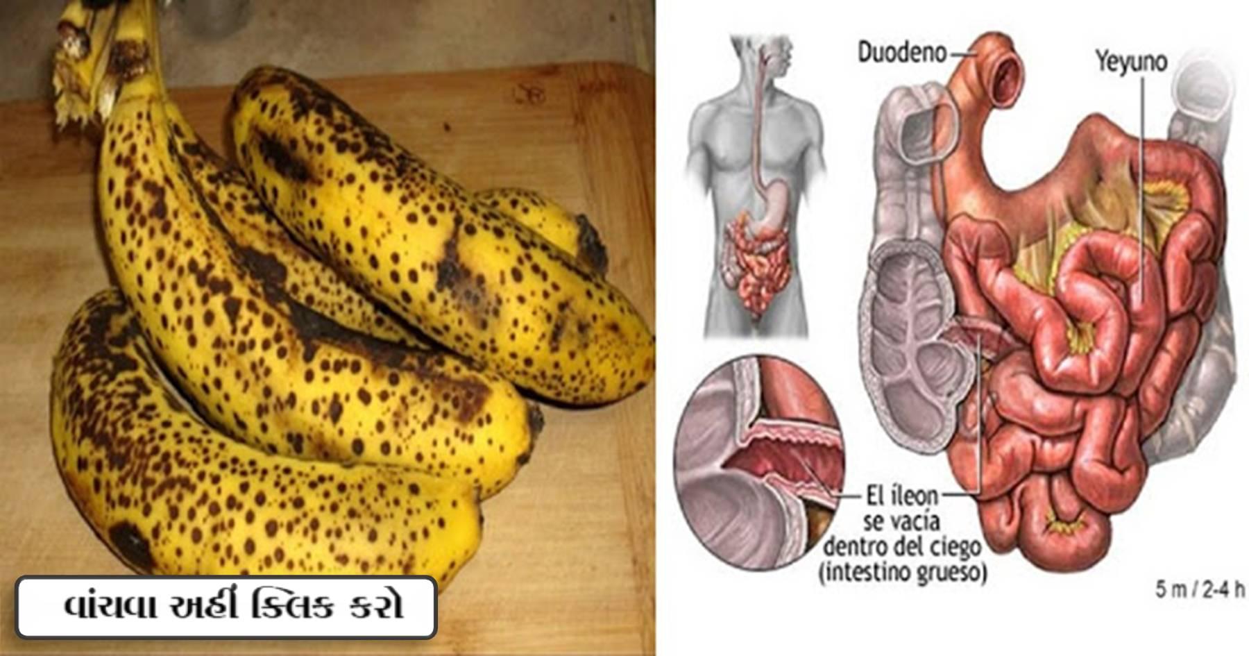 કાળા ધબ્બા વાળા કેળા ક્યારેય ફેંકશો નહિ, તેના ફાયદા જાણી તમે પણ આજ થી જ ફેંકવાનું બંધ કરી દેશો